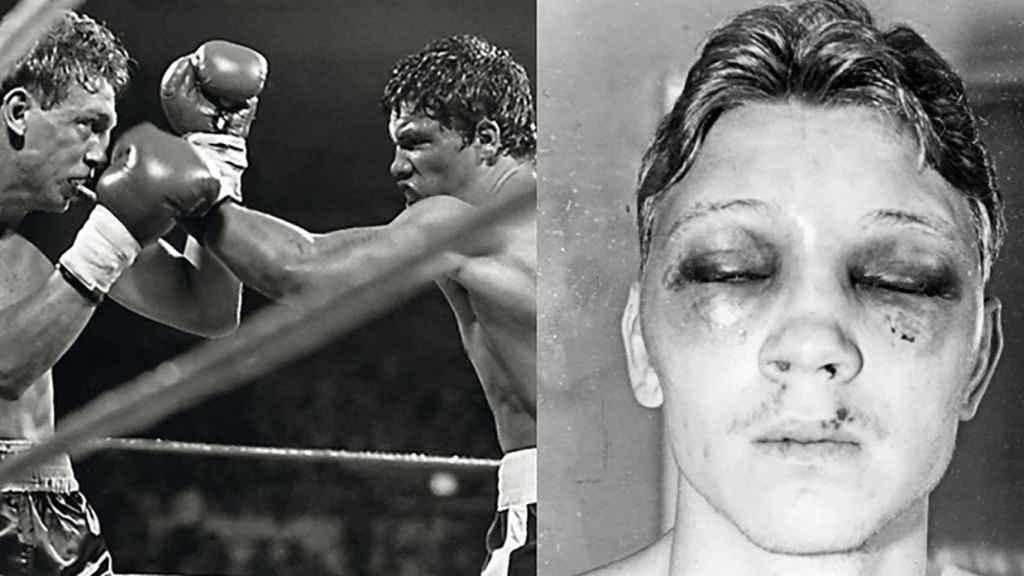Luis Resto vs. Billy Collins