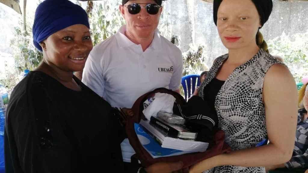 El presidente de la ONG Unión por el Bienestar de los Albinos de Guinea-Conakri, Kabinet Camara