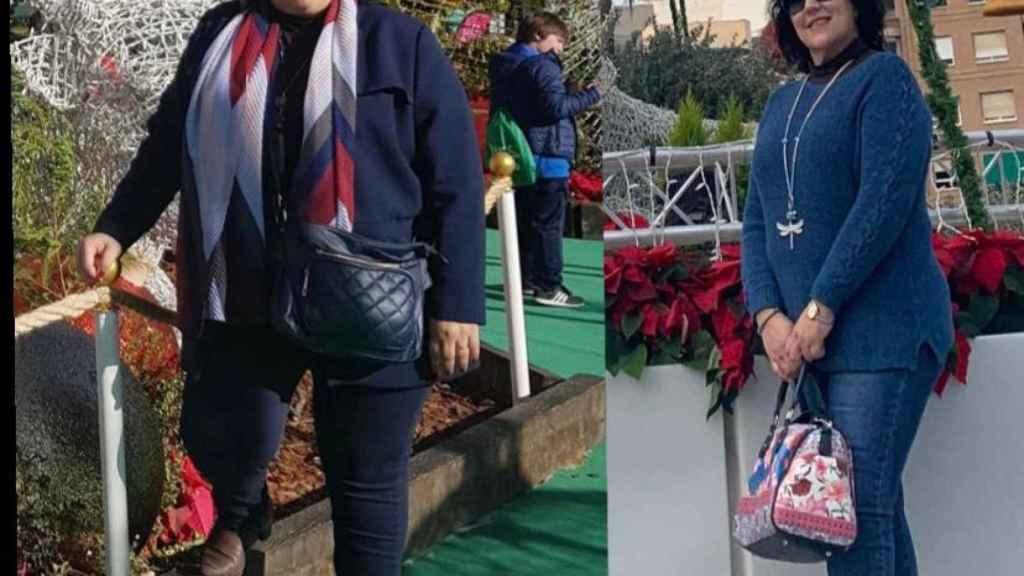 María Victoria antes y después de la operación.