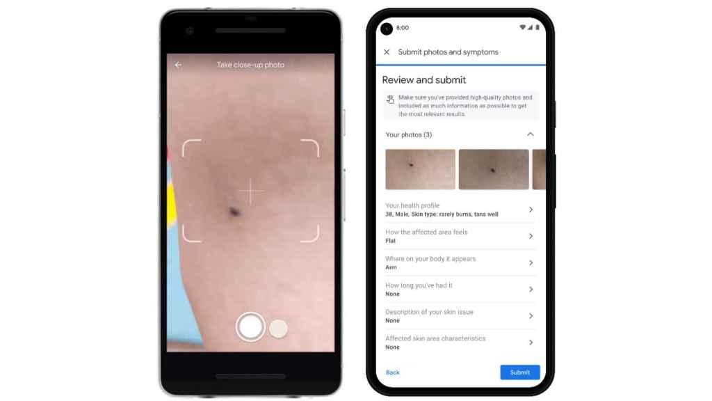 Google detectará el cáncer de piel con sólo una foto hecha con tu móvil