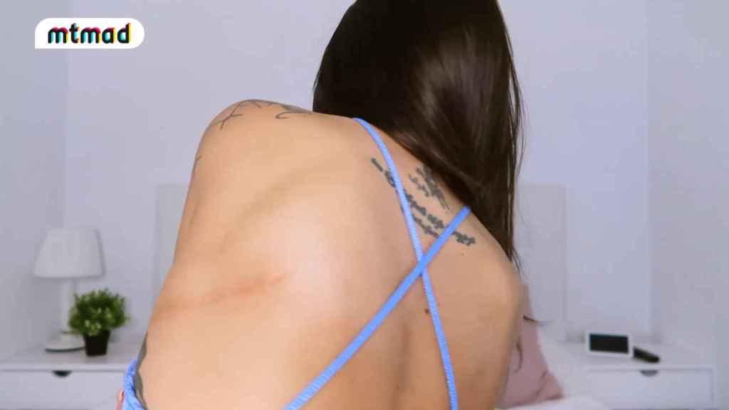 Fiama ha mostrado la cicatriz de su operación.