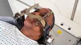 Un paciente hace uso de una Leksell Gamma Knife, el equipo contra el cáncer donado por Amancio Ortega a Valencia. EE