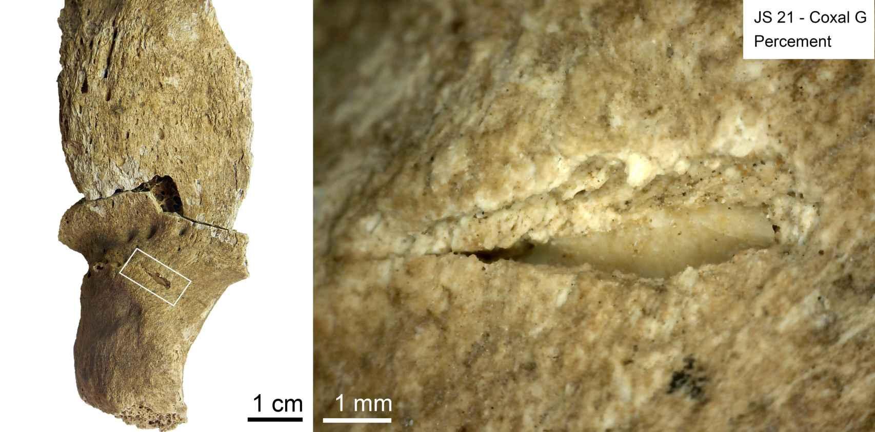 Marcas de impacto de proyectil en uno de los individuos de la necrópolis.