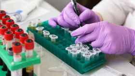 Un laboratorio médico, durante una prueba. FOTO: Pixabay