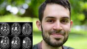 Pablo, superviviente de glioblastoma, y la progresión de su tumor de 2017 a 2021.