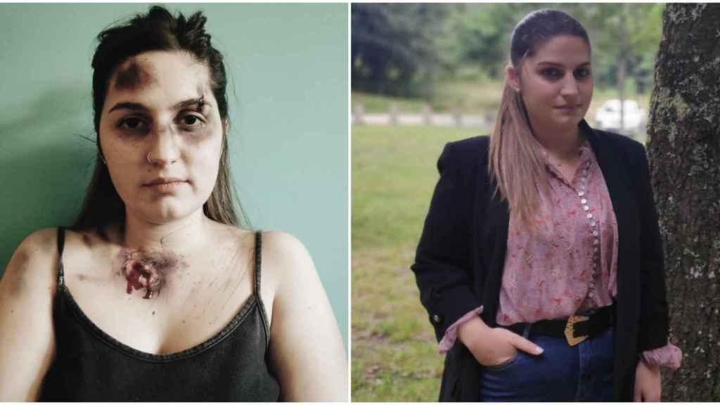 A la izquierda, Noelia maquillada para reclamar más protección. A la derecha, una foto actual de ella.