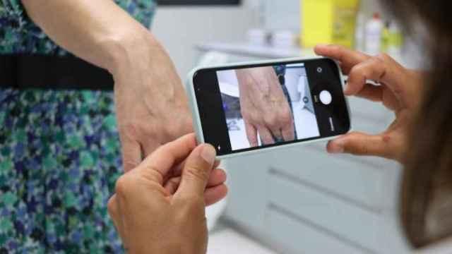 Una paciente se somete a una prueba de teledermatología.