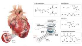 Ilustración del implante del dispositivo en el corazón