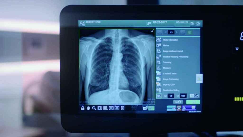 Una radiografía con uno de los equipos de Fujifilm.