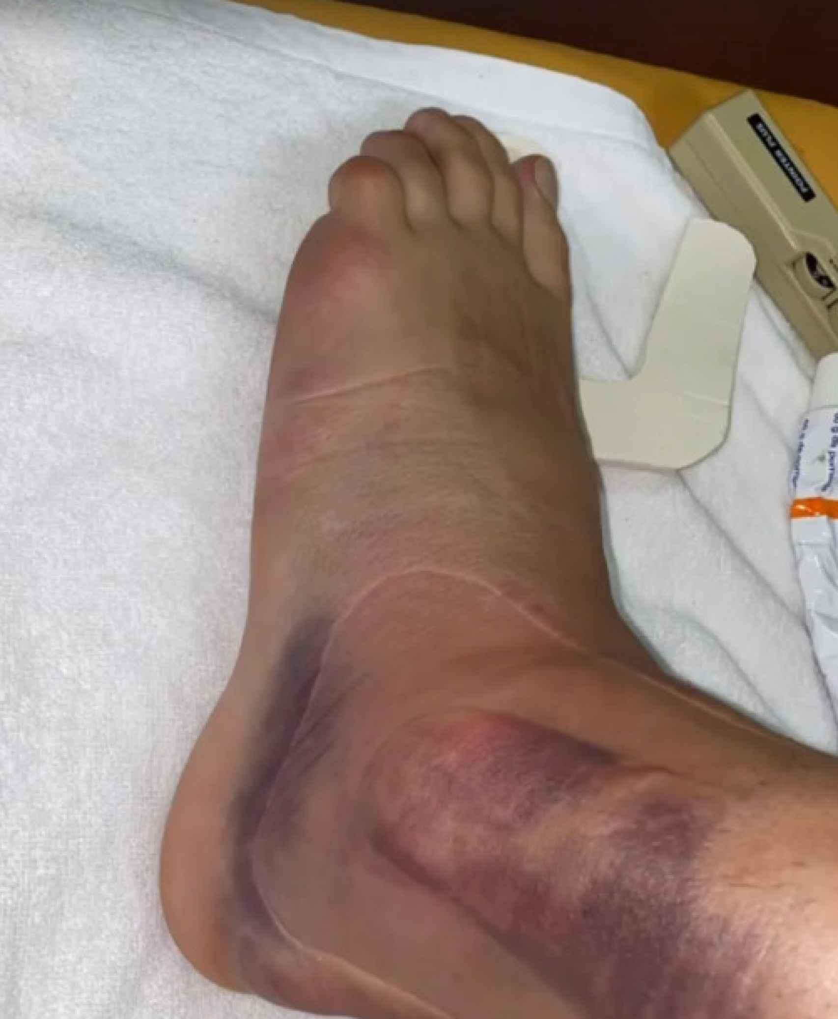 La lesión de Ceballos