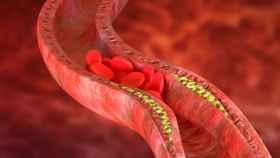 Placas de colesterol en las paredes de las arterias.
