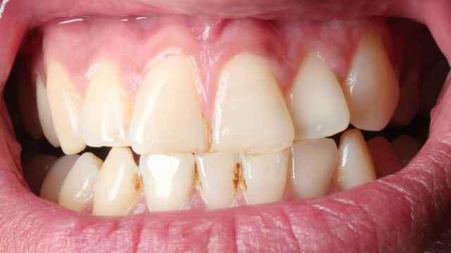 ¡Elimina el sarro en cinco minutos y sin ir al dentista!