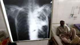 Una radiografía de los pulmones con un enfermo de tuberculosis detrás.