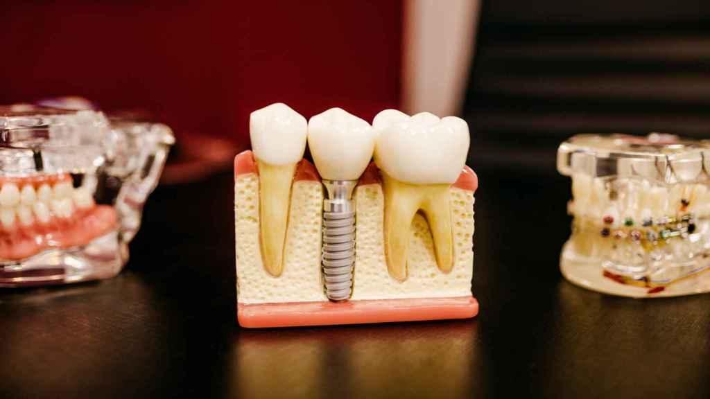 El implante puede mantener los dientes libres de bacterias.