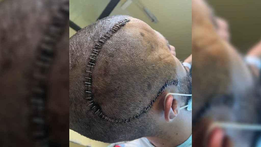 La cicatriz de Cristian tras la intervención que le salvó la vida.