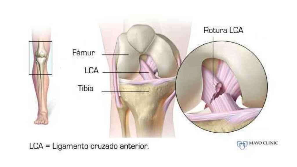 Anatomía del ligamento cruzado anterior
