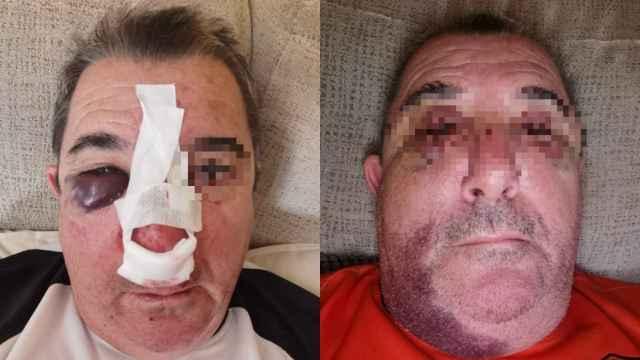 El subinspector José Luis R., agredido el pasado 12 de octubre en Zaragoza.