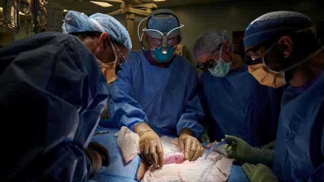Los cirujanos observan el órgano del cerdo implantado de forma externa en un ser humano. Joe Carrotta for NYU Langone Health/Reuters