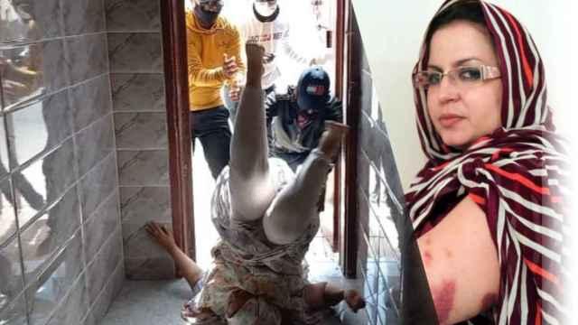 Sultana Khaya en un agresión por agentes de Marruecos en su casa esta semana, según Ángela Carrillo; y con moratones en la otra imagen.